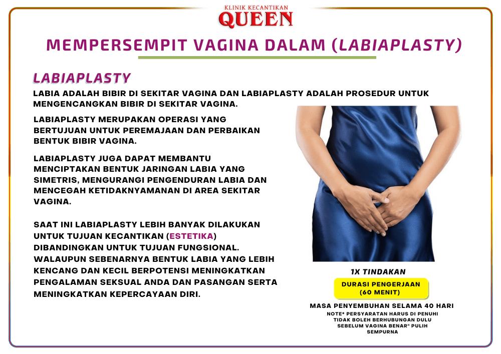 Mempersempit_vagina