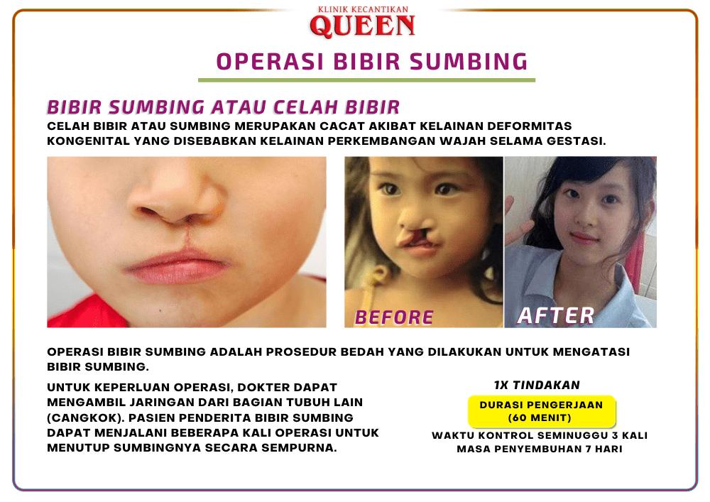 bibir_sumbing