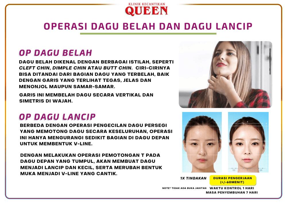dagu_lancip