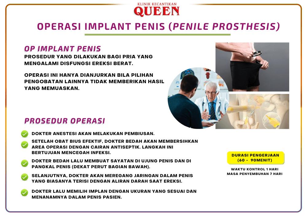 implant penis