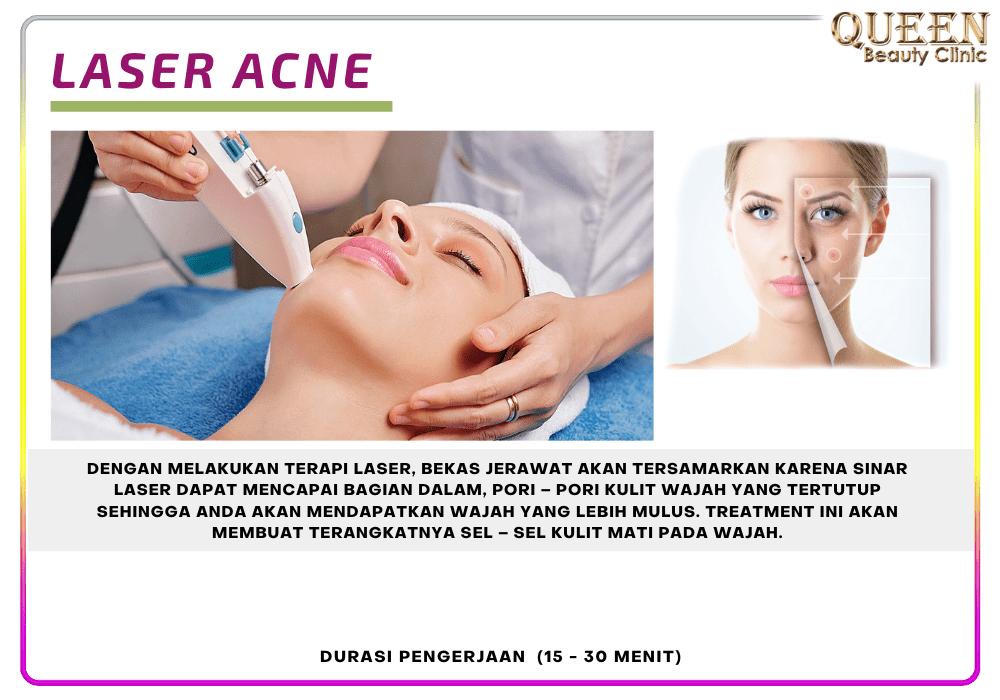 laser-acne