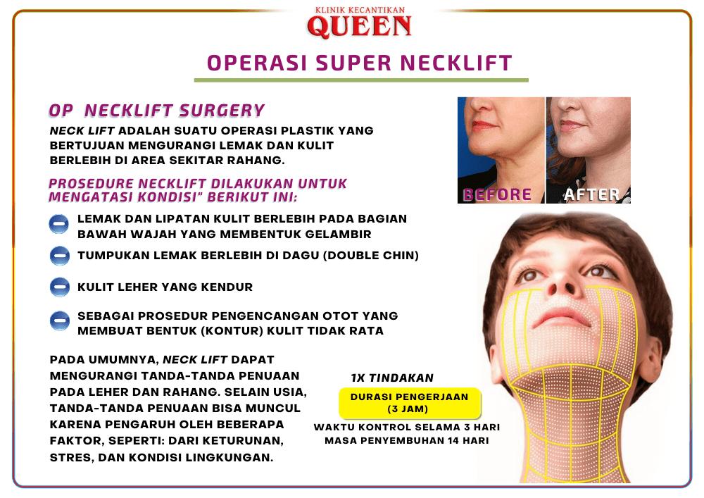 necklift