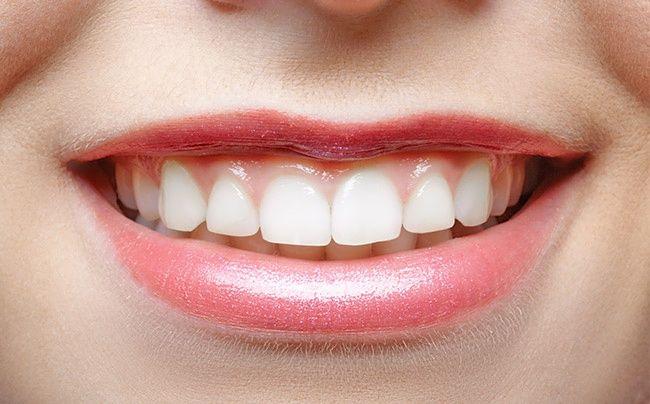 operasi bibir klinik kecantikan queen jakarta