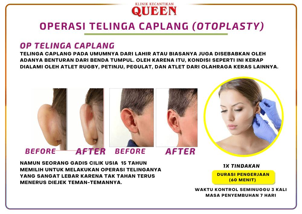 telinga_caplang