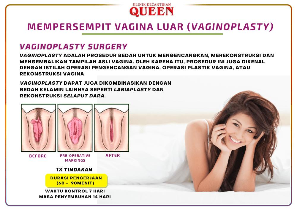 vagina_luar